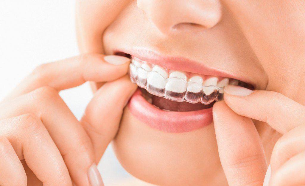 invisalign smile day studio dentistico colombo cova